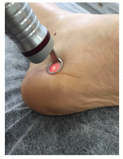 Taller temático de puntos gatillo inferiores y terapia láser